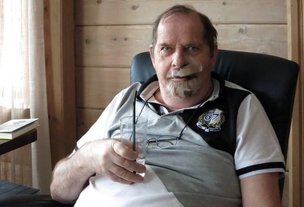 Bjørgulf fikk motorsaga rett i fleisen!  Foto: Jon Olav Ørsal